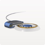 кохлеарный имплант sonata